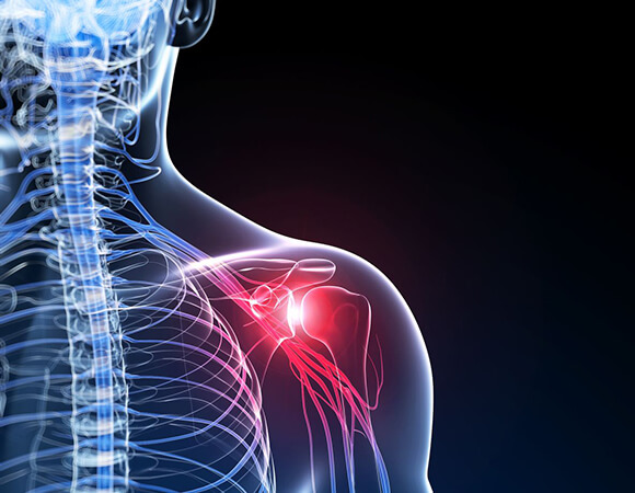 capsulitis shoulder steroid injection