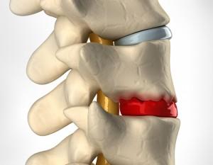 Herniated or Bulging Disc Pain Chiropractic Treatment Vietnam