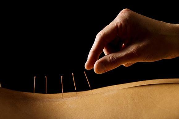 Back pain treatment Maple Acupuncture Vietnam
