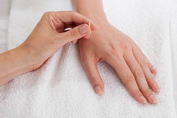 Headaches Migraines treatment Maple Vietnam
