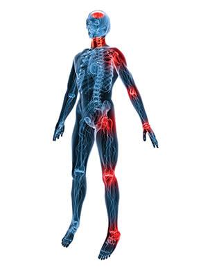 Joint pain treatment Maple Acupuncture Vietnam