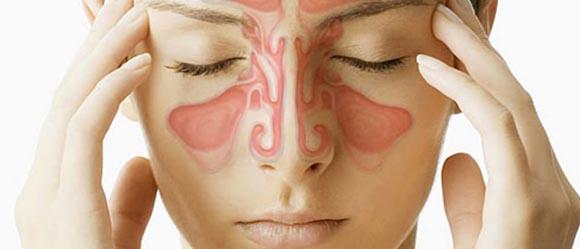 Sinusitis treatment Maple Acupuncture Vietnam