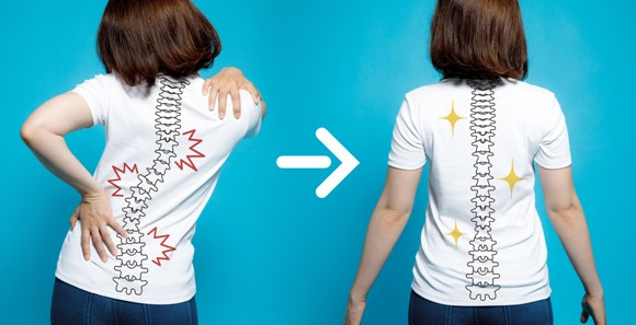 Scoliosis treatment with Maple 1