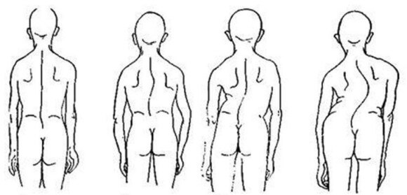 Scoliosis treatment with Maple 2