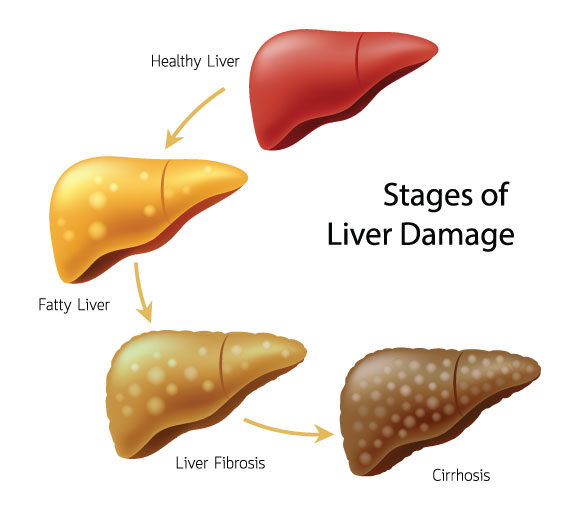 Alcohol Bad Cholesterol And Unhealthy Liver Maple