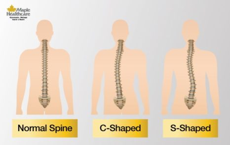 shapes of scoliosis